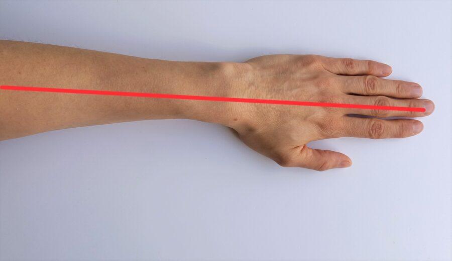 axe poignet (dorsal)