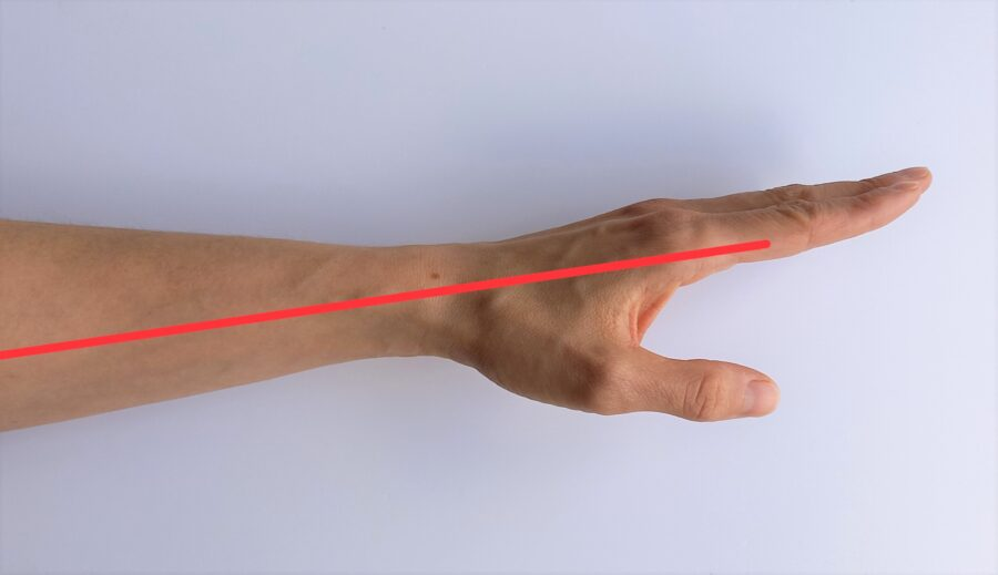 axe poignet (radial)