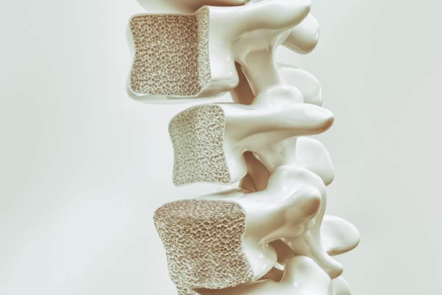 Osteoporose Wirbelsaule