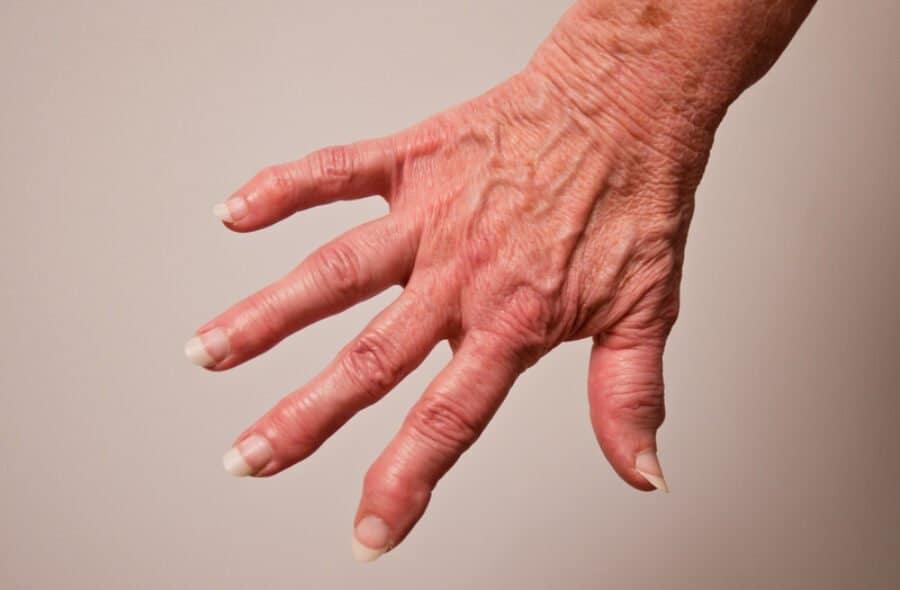 Arthrose des articulations des doigts